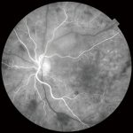 OCT Triton tomografo de coherencia optica oftalmologia Topcon Angio OCT