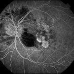 retinografo retina equipo oftalmologico rfg fluoresceina autofluorescencia retinógrafos
